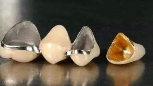 出现哪些情况烤瓷牙需要拆掉?