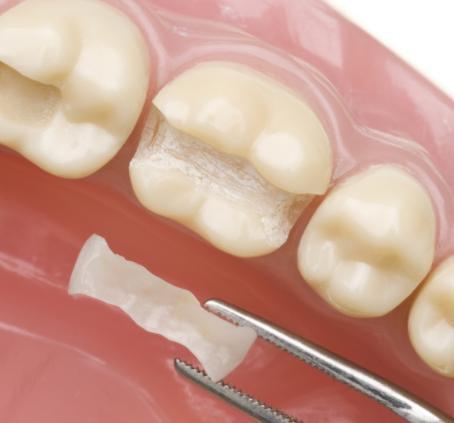 为什么很多人会选择嵌体修复,牙齿嵌体修复的优点都有哪些?