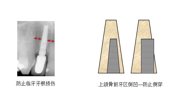 张家口牙齿种植