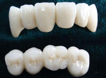 分析一下全瓷牙为什么会比普通烤瓷牙要贵?