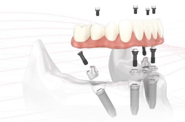 如何让种植牙的使用时间更长久?