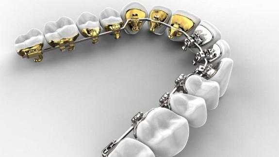 牙齿钢丝矫正与隐形矫正之间的区别