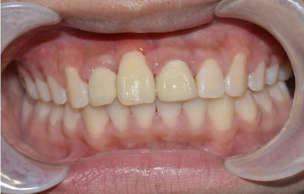 刚做了牙齿矫正的,刷牙时要注意这三点!牙齿矫正多久复诊一次?