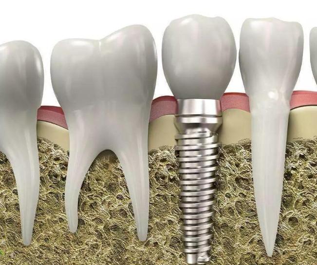 牙齿掉了要多久才能去镶牙?镶牙后需要注意的9个事项!