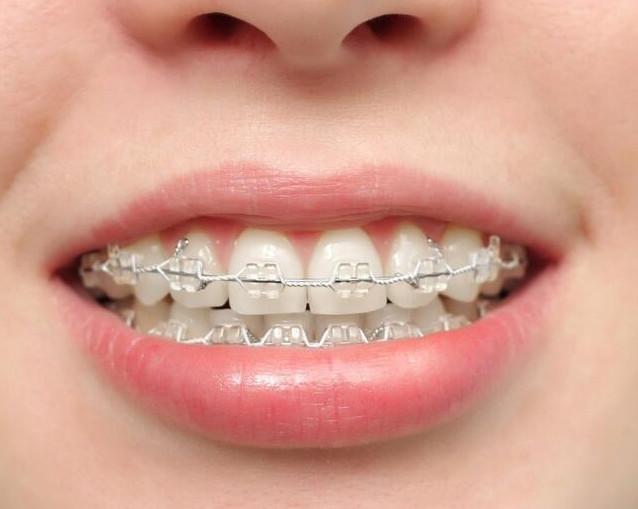 成年之后还能不能矫正牙齿?难度大不大?