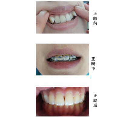 牙齿正畸带上带牙套后要注意这四点,可帮你尽快适应牙套!