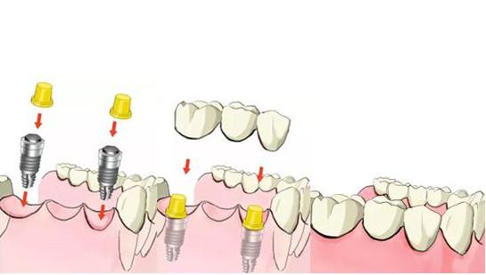 一般种植牙的寿命是多少年?