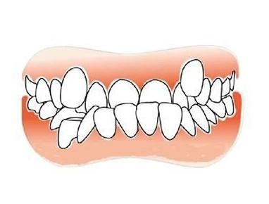 做了激光美白牙齿后要注意以下这五点!