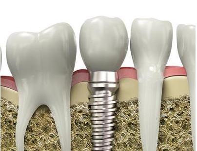 种牙就是烤瓷牙吗?牙齿缺失后是装假牙好还是镶牙好?