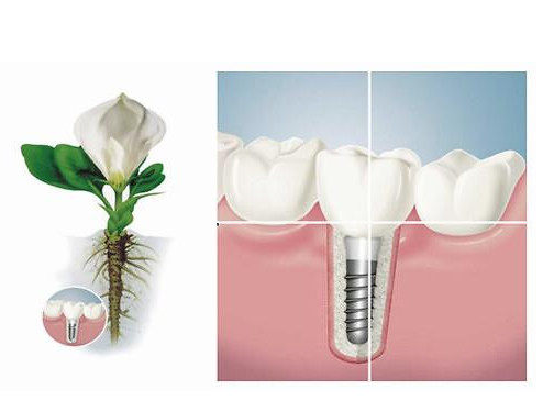 种牙有什么风险和副作用?
