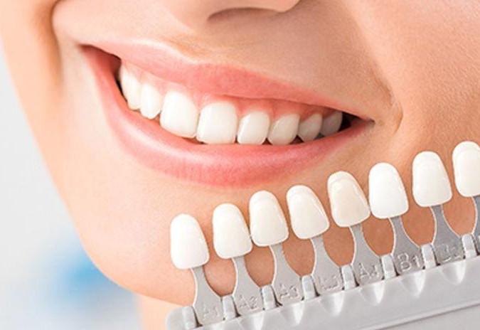 牙齿美容贴片不适合哪些人?牙齿美容贴的护理方法有哪些?