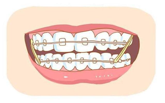 矫正牙齿的方法有多少?正畸治疗后有哪些注意事项?