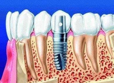 全口种植牙修复的两种方式