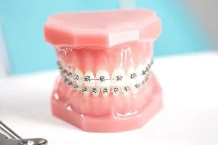 人过了三十岁还能做牙齿矫正吗?