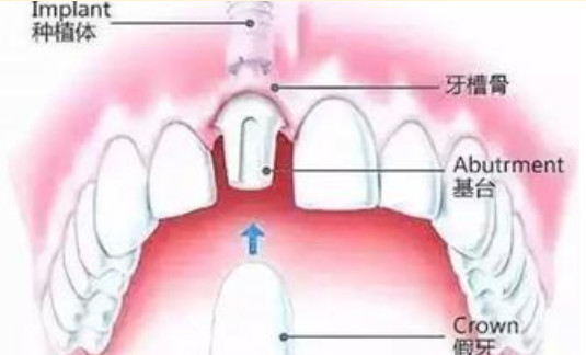种植牙的流程是什么?