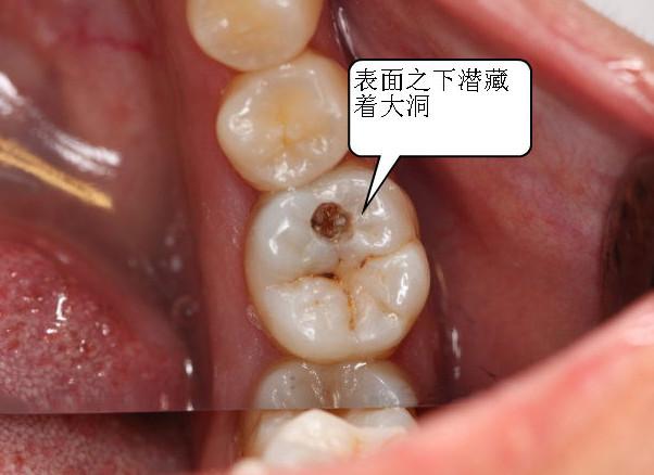 龋齿如何预防?张家口口腔诊所医生告诉你。