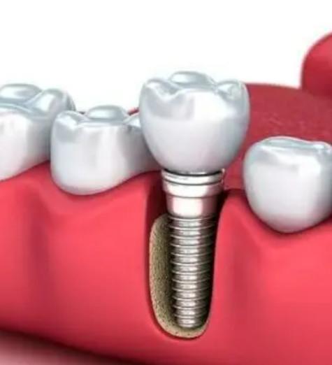 种植牙怎么维护才更好?