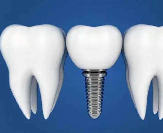 选择种植牙的四个优点
