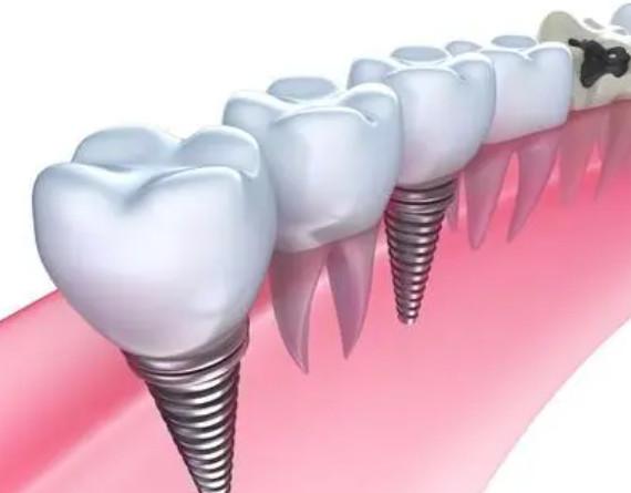 选择种植牙效果如何?
