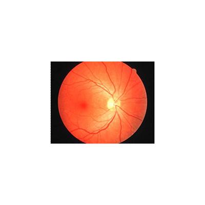 漯河眼底视网膜静脉栓塞
