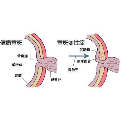 眼底视网膜静脉栓塞