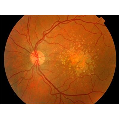 眼底黄斑变性