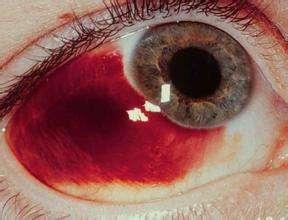 漯河眼底出血治疗