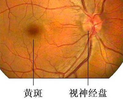 漯河眼底病变的症状有哪些,明显吗?