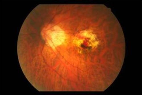 漯河眼底黄斑变性:眼睛出现了黄斑是什么原因导致的?