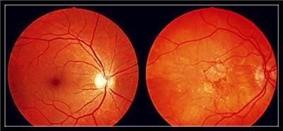 河南眼底黄斑变性治疗:是什么原因引起了黄斑病变