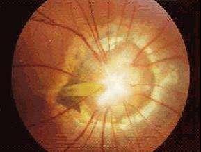 河南眼底病变治疗:眼底病变都有哪些症状可寻?
