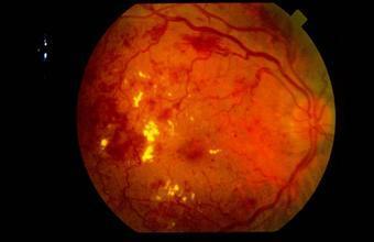 河南眼底病变治疗:眼底病变能否自然恢复?