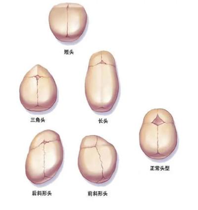 想了解狭颅症概念?郑大三附院为您在线解答