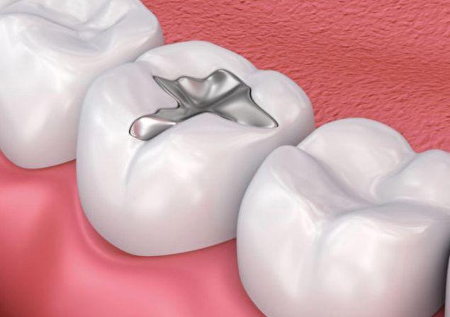 兰州牙齿矫正