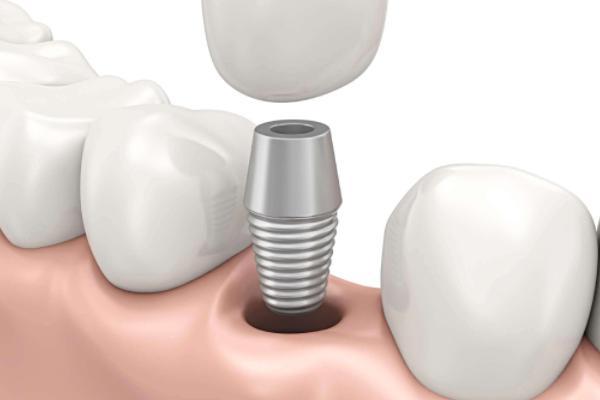做牙齿修复工作,口腔医院这样来做