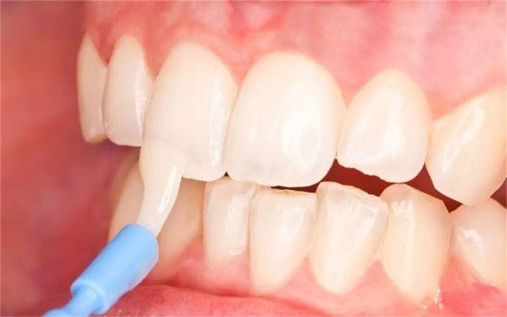 兰州牙齿美白
