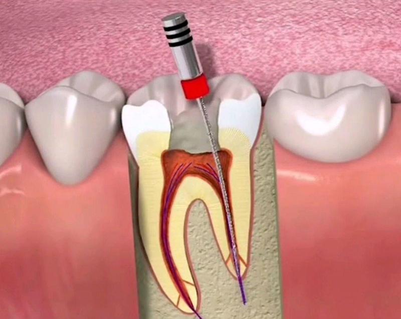 牙齿修复工作之牙齿过敏的解决方法