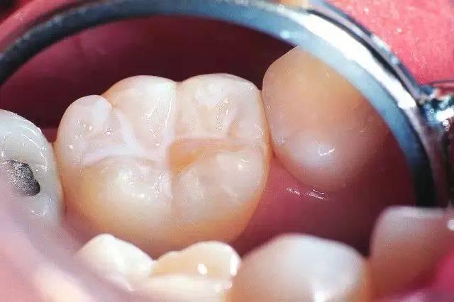 定要找个时间去看牙医是为什么?