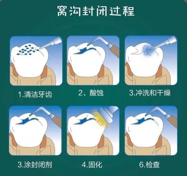 口腔医院告诉你牙龈出血问题的根本原因