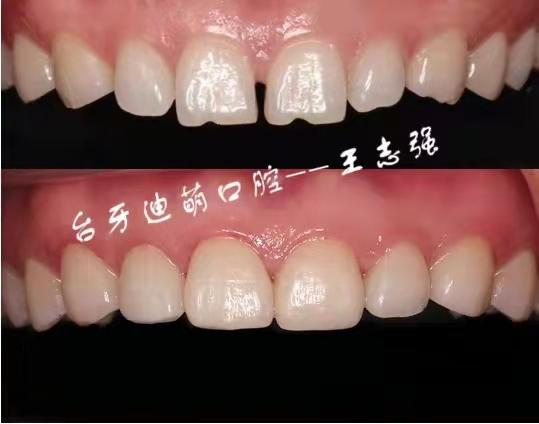 牙齿修复美容