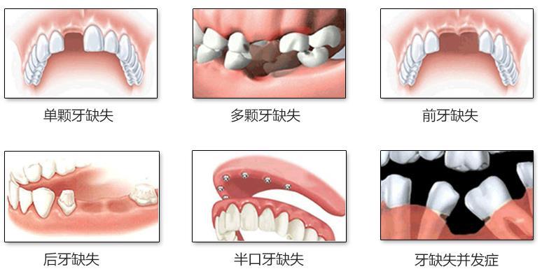 兰州种植牙齿