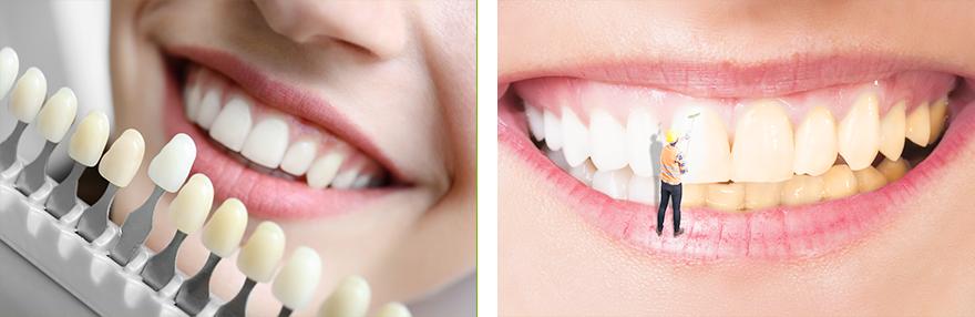兰州牙齿修复