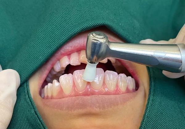 口腔医院的牙齿矫正技术,可以解决那些牙齿问题?