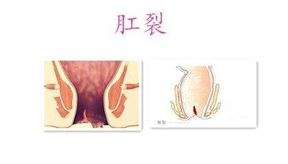 肛裂的症状