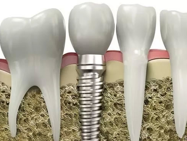 全口牙齿缺失