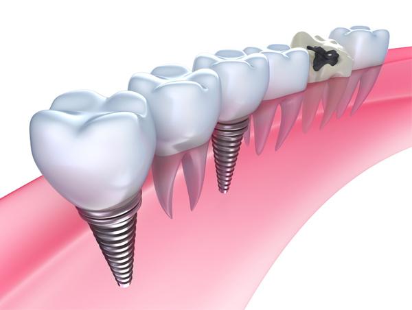 半口牙齿缺失