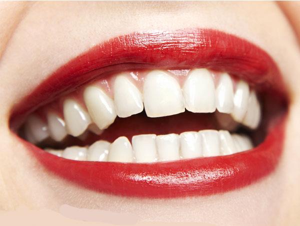 轻度色素牙