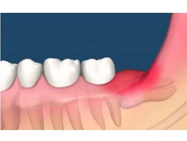 牙周炎根尖炎
