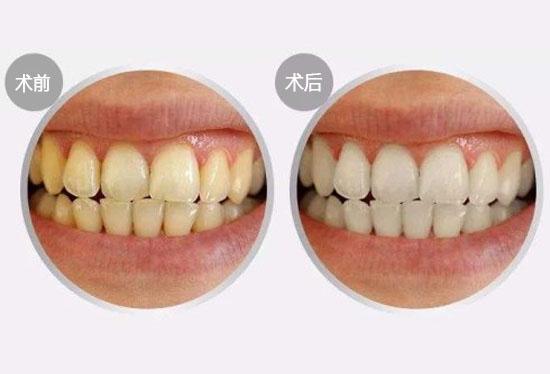 王小姐美白牙齿找回自信