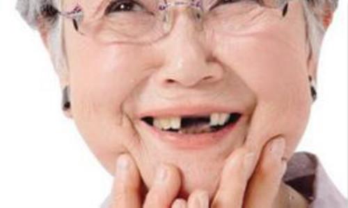 南充牙齿缺失治疗